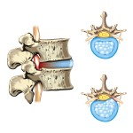 Problems with spinal discs