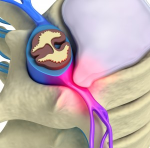 Prolapse of intervertebral disc closeup 3d image
